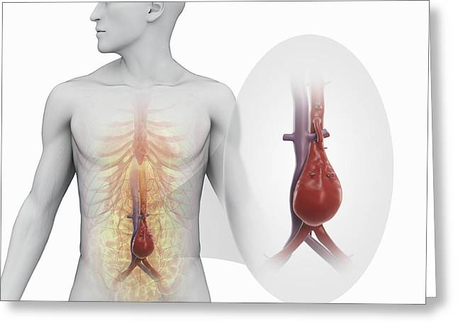 Abdominal Greeting Cards - Abdominal Aortic Aneurysm Greeting Card by Science Picture Co