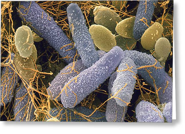 Microbiology Greeting Cards - Acetobacter And Schizosaccharomyces Greeting Card by Andrew Syred