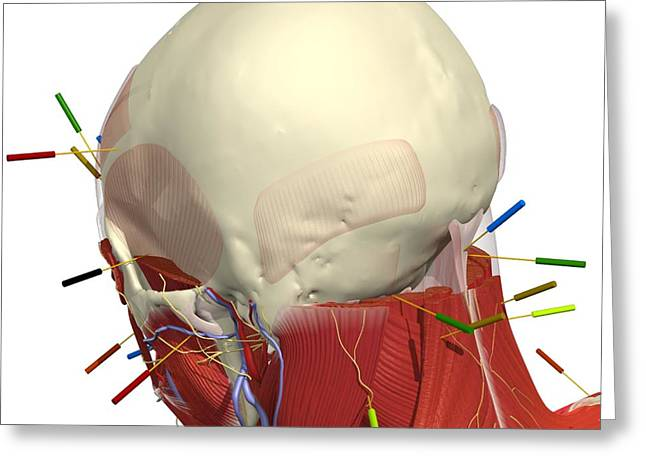 Alternative Skull Greeting Cards - Acupuncture Of The Head And Neck Greeting Card by Medical Images, Universal Images Group