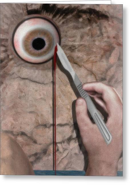 Eye Shadow Greeting Cards - Acute Eye Pain  Greeting Card by Jacob King
