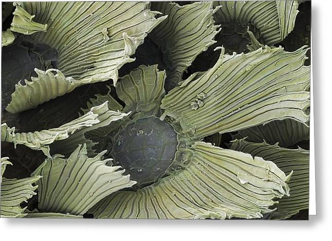 Leaf Hairs Greeting Cards - Air Plant Trichomes SEM Greeting Card by Science Photo Library