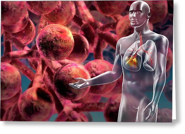 Alveoli In The Lung Greeting Card by Harvinder Singh