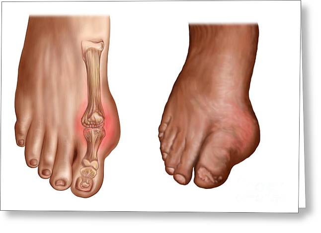 Comparison Greeting Cards - Anatomy Of A Swollen Foot Greeting Card by Stocktrek Images