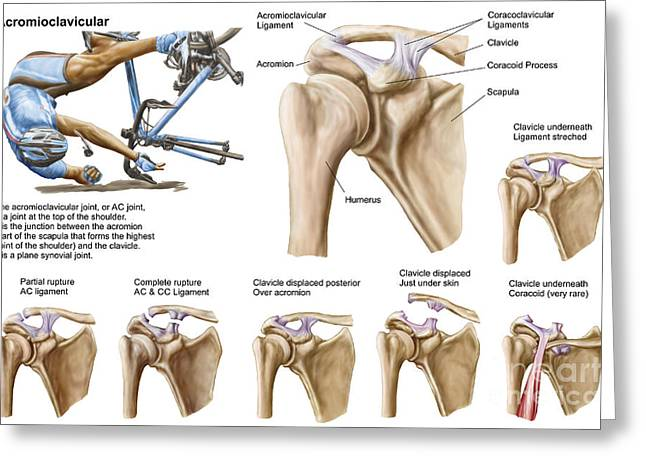 Human Joint Greeting Cards - Anatomy Of Acromioclavicular Joint Greeting Card by Stocktrek Images