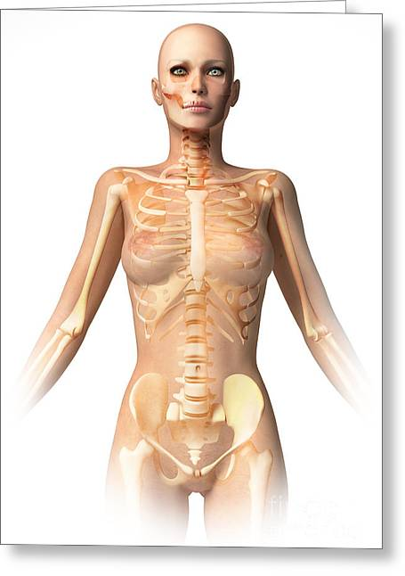 Costae Fluitantes Greeting Cards - Anatomy Of Female Body With Bone Greeting Card by Leonello Calvetti