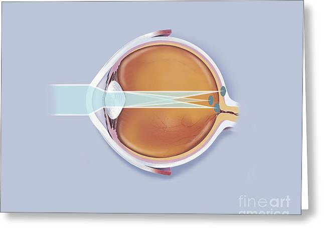 Anatomy Of Human Eye Showing Focal Greeting Card by TriFocal Communications