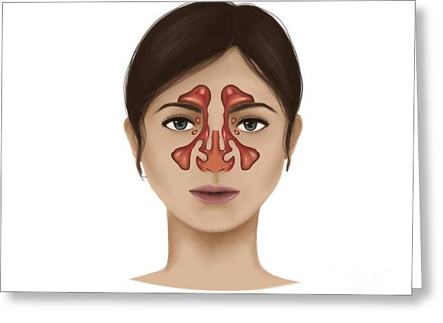 Nasal Cavity Greeting Cards - Anatomy Of Nasal Sinuses Greeting Card by Stocktrek Images