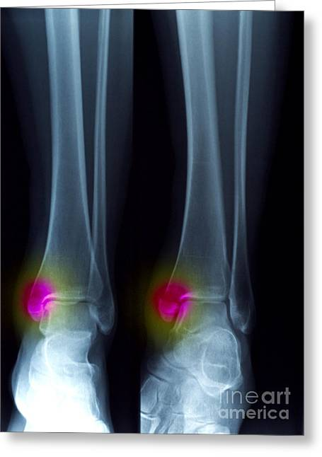 Ankle Fracture Greeting Card by Scott Camazine