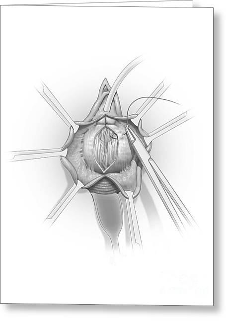 Problem Digital Art Greeting Cards - Anterior Vaginal Wall Repair Surgery Greeting Card by Nicholas Mayeux