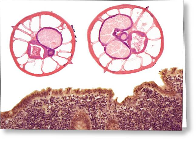 Appendicitis Due To Threadworm Infection Greeting Card by Steve Gschmeissner