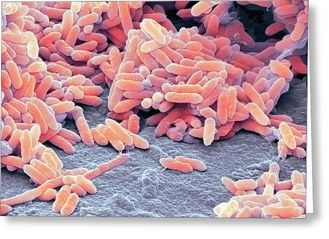 Aquaspirillum Bacteria Greeting Card by Steve Gschmeissner