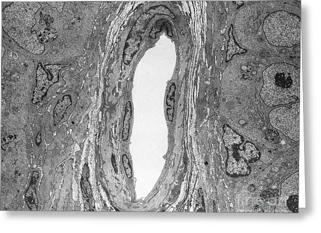 Constricting Greeting Cards - Arteriole, Tem Greeting Card by David M. Phillips