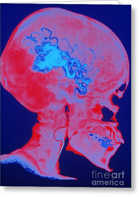 Angiogram Greeting Cards - Arteriovenous Malformation Greeting Card by LunaGrafix