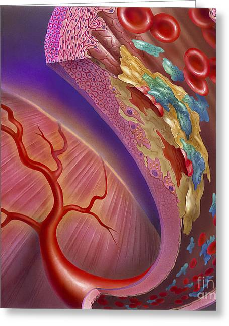 Abstract Movement Greeting Cards - Artery Showing Atherosclerotic Plaque Greeting Card by TriFocal Communications