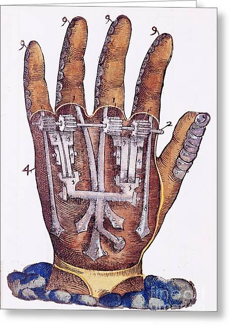 Artificial Hand Designed By Ambroise Greeting Card by Wellcome Images