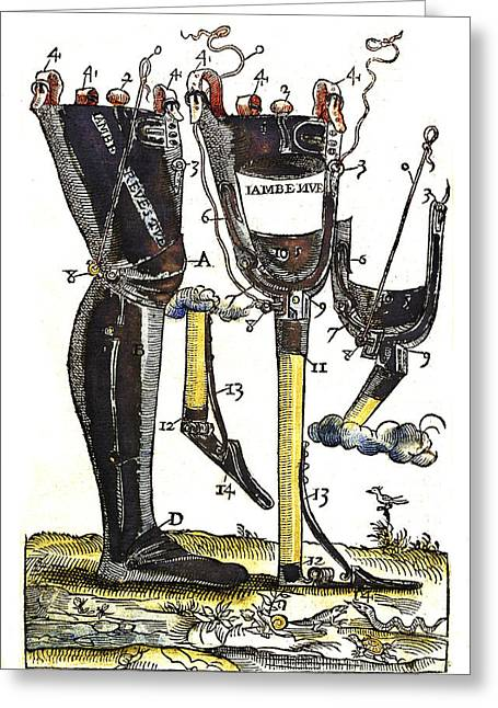 Artificial Legs Designed By Ambroise Greeting Card by Wellcome Images