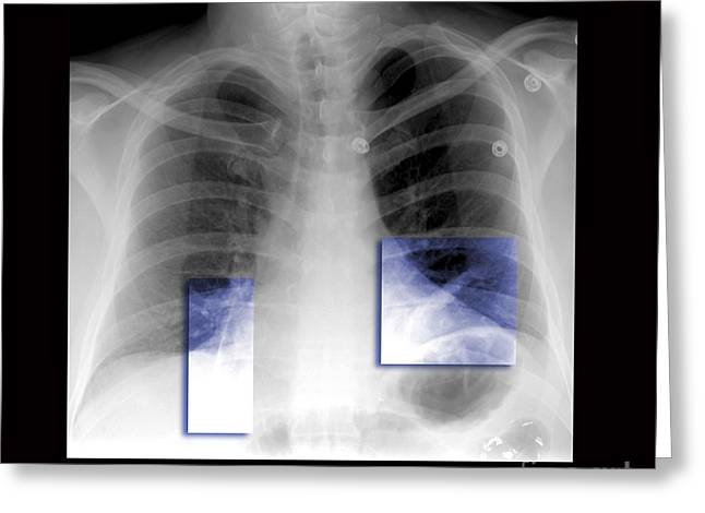 Chest Greeting Cards - Atelectasis Of Lung Greeting Card by Living Art Enterprises