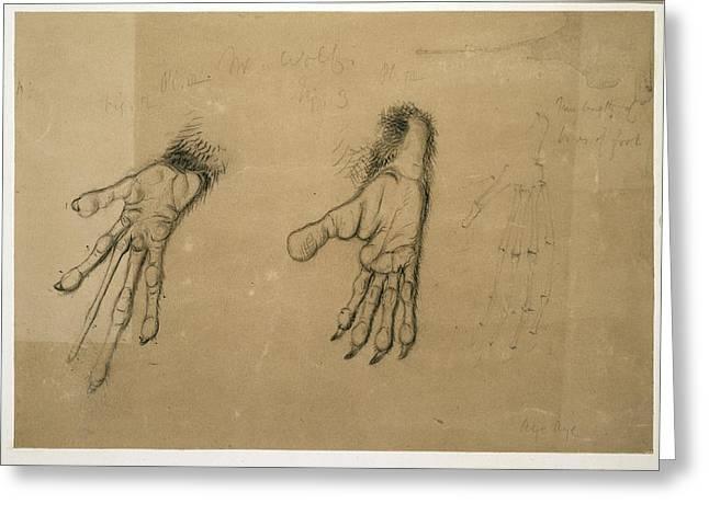 Aye Greeting Cards - Aye-aye paws, artwork Greeting Card by Science Photo Library