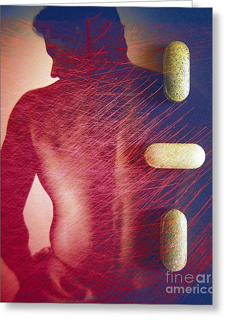 Medication Greeting Cards - Back Pain And Drug Therapy Greeting Card by Dennis D. Potokar