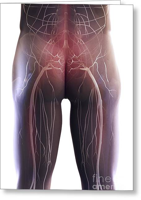 Sciatic Nerves Greeting Cards - Back Pain Sciatica Greeting Card by Science Picture Co