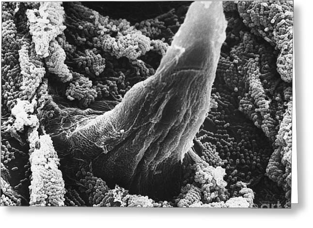 Sem Greeting Cards - Bacteria On Rat Tongue, Sem Greeting Card by David M. Phillips