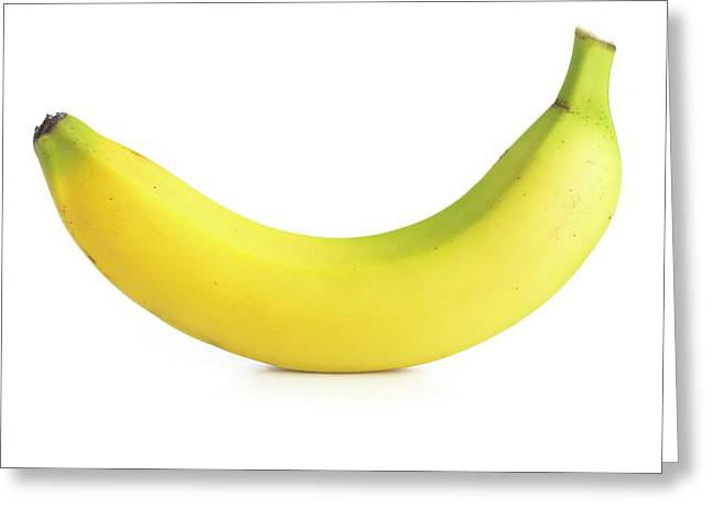 Banana Greeting Card by Science Photo Library