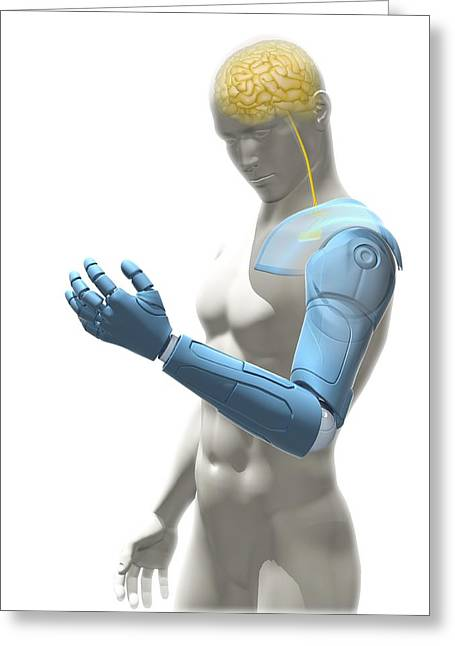Brain Controlled Greeting Cards - Bionic arm, artwork Greeting Card by Science Photo Library