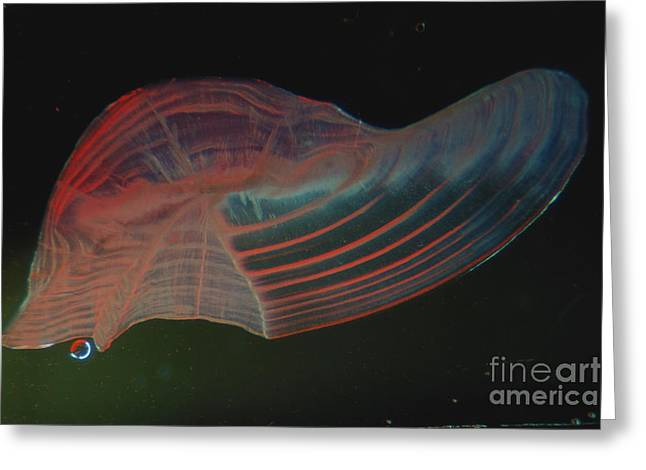 Ear Rings Greeting Cards - Black Drum Otolith Greeting Card by Gregory G. Dimijian, M.D.