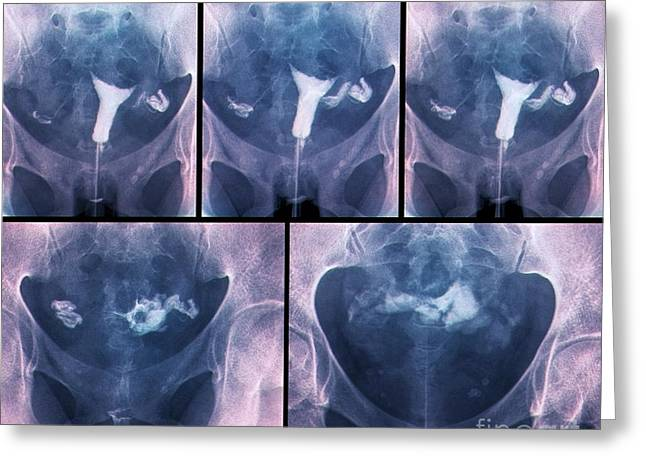 Disorder Greeting Cards - Blocked Fallopian Tubes, X-rays Greeting Card by Zephyr
