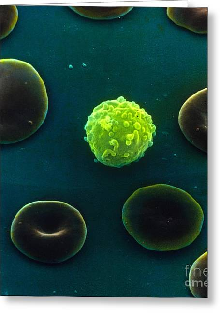 Sem Greeting Cards - Blood Cells, Sem Greeting Card by David M. Phillips