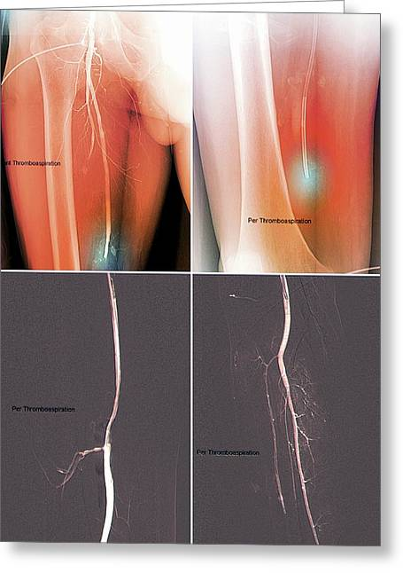 Blood Clot In Leg Greeting Card by Zephyr