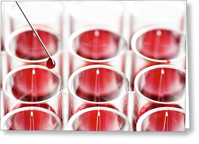 Blood Sample And Multiwell Tray Greeting Card by Science Photo Library