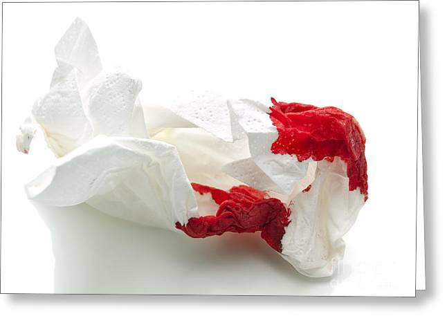 Handkerchief Greeting Cards - Bloody tissue Greeting Card by Sinisa Botas