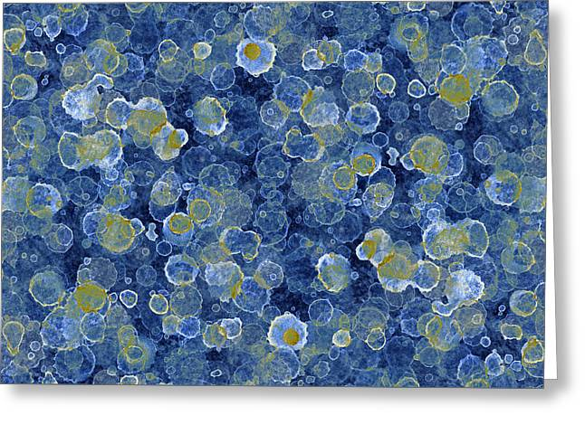 Blue Drip Greeting Card by Frank Tschakert