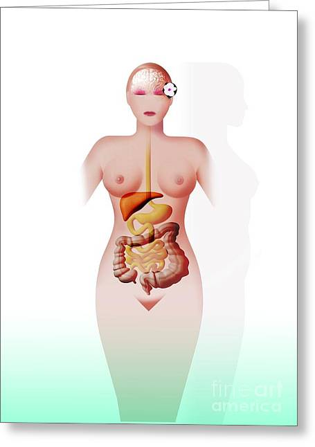 Detoxifying Greeting Cards - Body Cleansing, Conceptual Artwork Greeting Card by Hans-ulrich Osterwalder