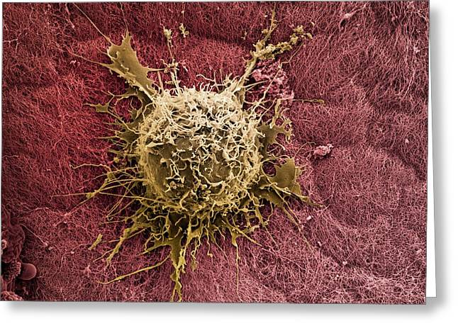 Bone Marrow Stem Cell On Cartilage Greeting Card by Science Photo Library