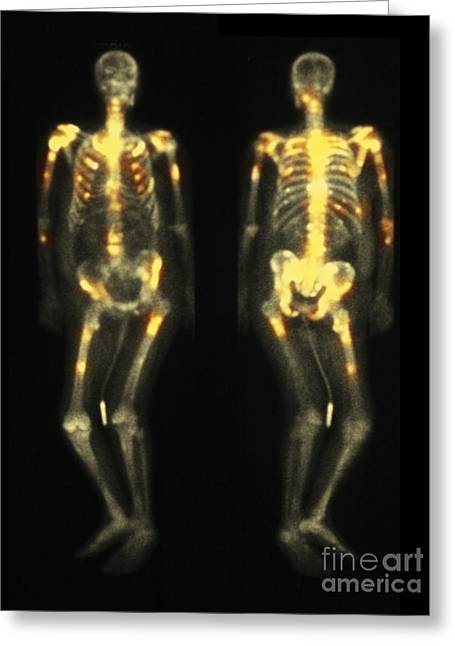 Bone Scan Showing Multiple Metastases Greeting Card by Scott Camazine
