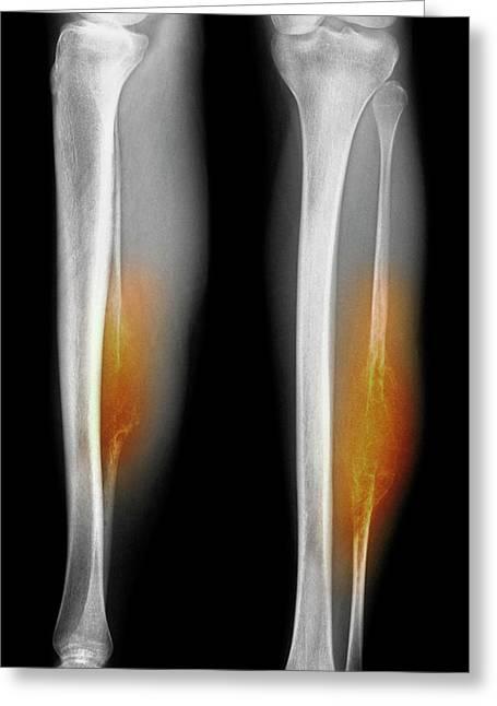 Bone Tumour Greeting Card by Mike Devlin