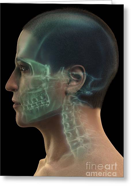 Frontal Bones Greeting Cards - Bones Of The Head Greeting Card by Science Picture Co