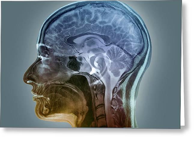 Brain Anatomy Greeting Card by Zephyr