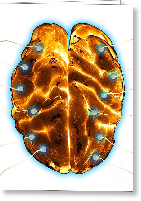 Eeg Greeting Cards - Brain Eeg Greeting Card by Monica Schroeder / Science Source