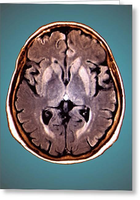 Brain In Creutzfeldt-jakob Disease Greeting Card by Zephyr