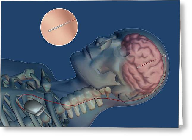 Electrical Stimulation Greeting Cards - Brain pacemaker, artwork Greeting Card by Science Photo Library