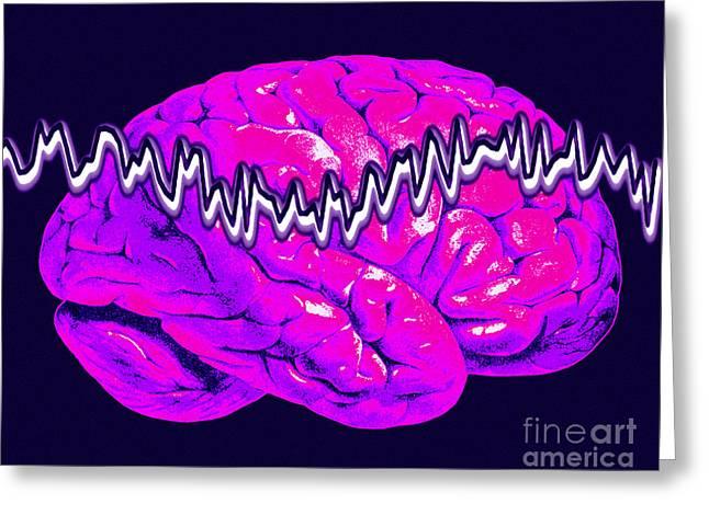 Brain Waves Greeting Cards - Brainwaves Greeting Card by Scott Camazine