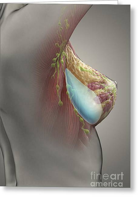 Female Body Greeting Cards - Breast Implant Greeting Card by Science Picture Co