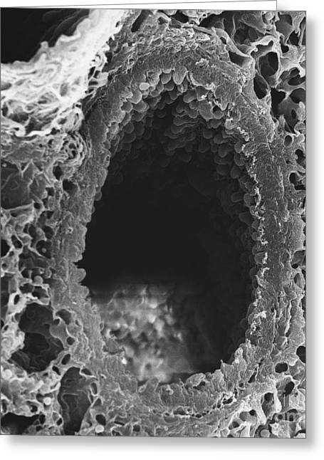Bronchi Greeting Cards - Bronchus Of Mouse Lung Sem Greeting Card by David M. Phillips