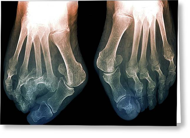 Bunions Greeting Card by Zephyr