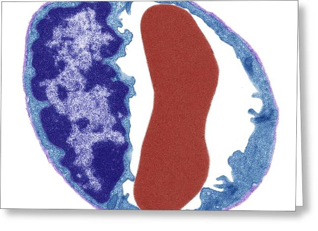 Capillary And Red Blood Cell Greeting Card by Steve Gschmeissner