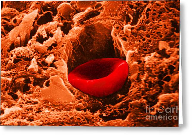 Sem Greeting Cards - Capillary, Sem Greeting Card by Dr. Cecil H. Fox