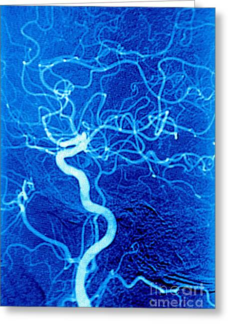 Medical Medical Imaging Greeting Cards - Carotid Angiography Greeting Card by James Cavallini